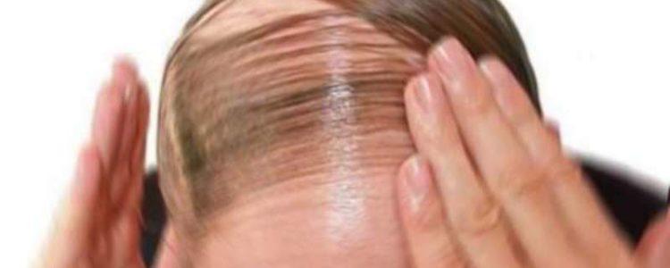Caduta dei capelli  i migliori rimedi per evitarla  8bed618f2a93