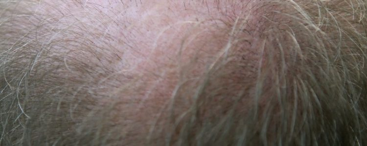 caduta-dei-capelli_8